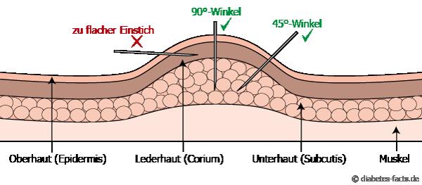 Illustration des richtigen Einstichwinkels