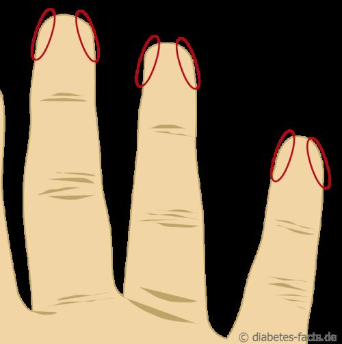 Abbildung der Einstichstellen an den Fingern zum Blutzucker Messen
